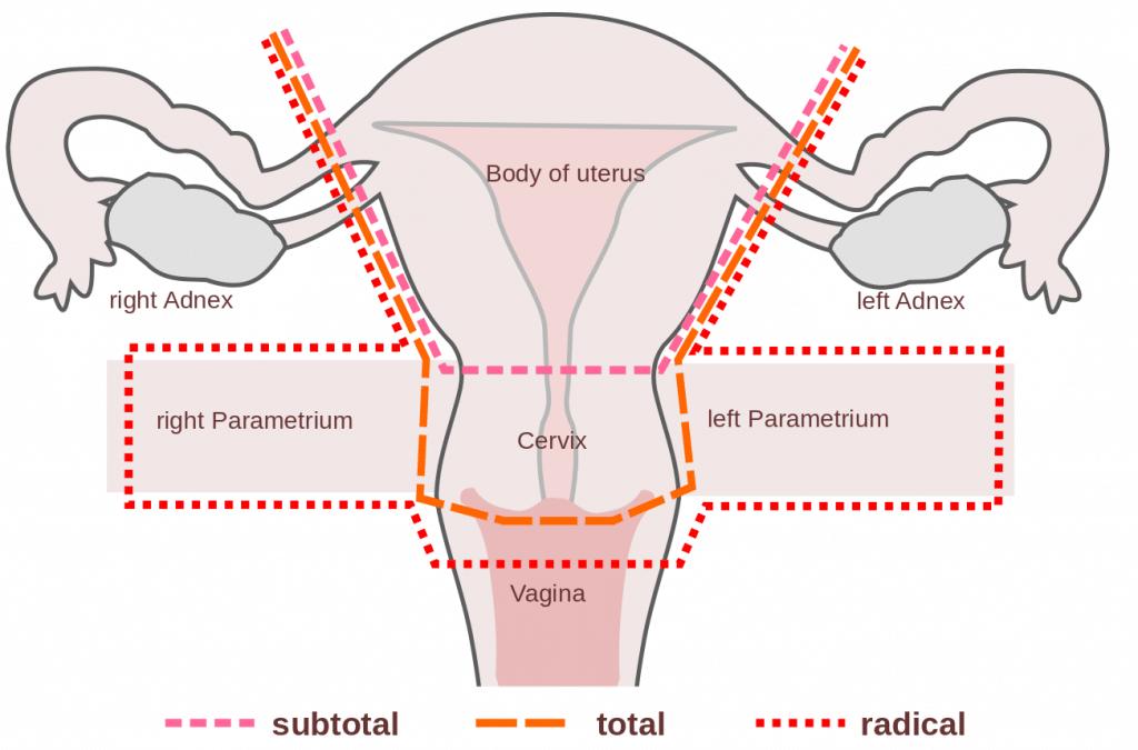 intraductal papilloma follow up intraductal papilloma of salivary glands