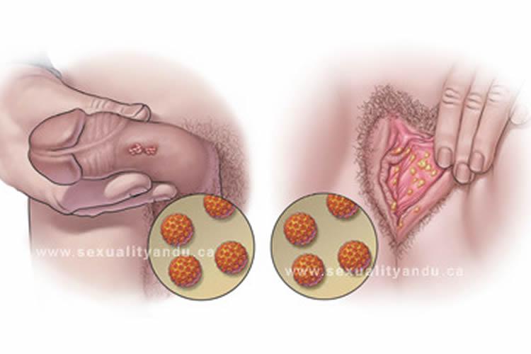 virus del papiloma humano como saber si lo tengo virus del papiloma humano genotipo 31