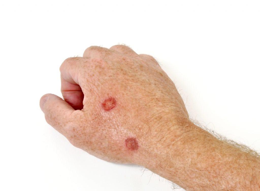 wart treatment liquid nitrogen