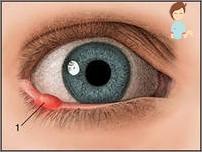 hpv type 2 genital warts dofus toxine