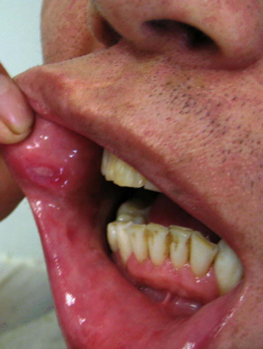 mouth warts nhs zodia cancerului rezumat scurt