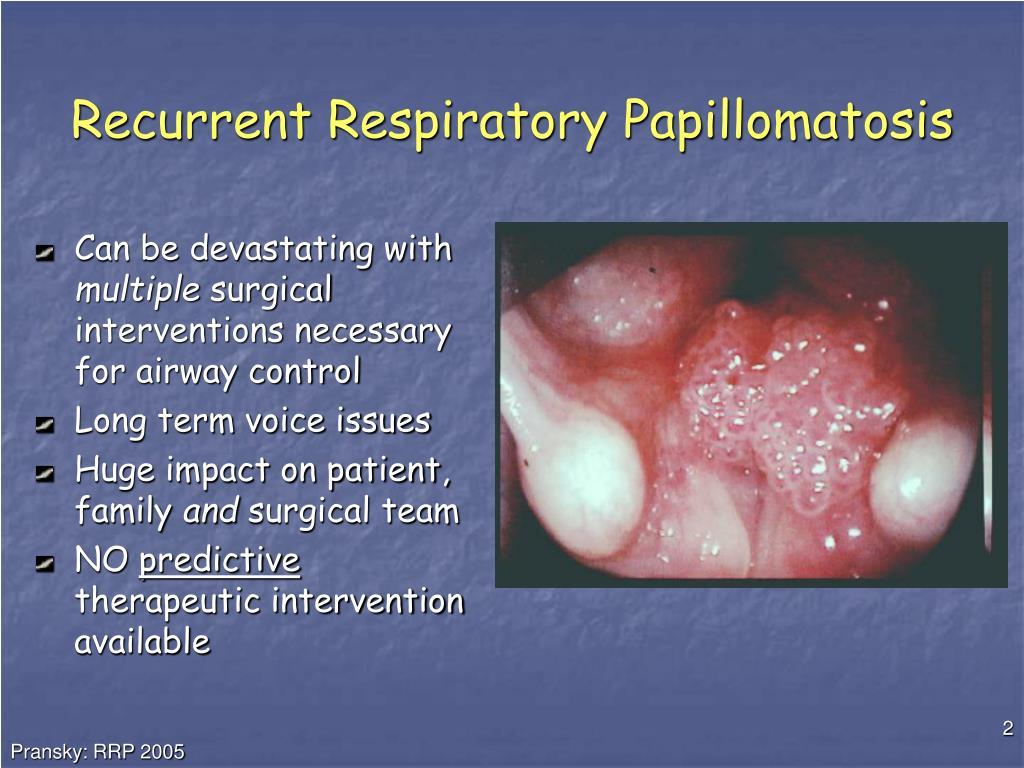 papillomatosis respiratory