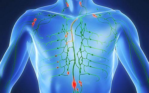 cancer limfatic simptome cauze paraziti intestinali la om tratament