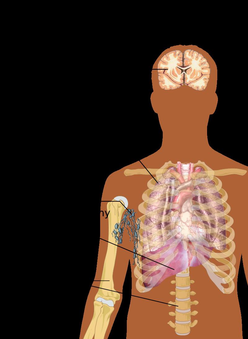 cancer of sarcomas