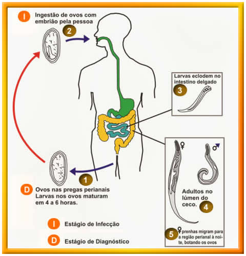 sintomas oxiurus criancas
