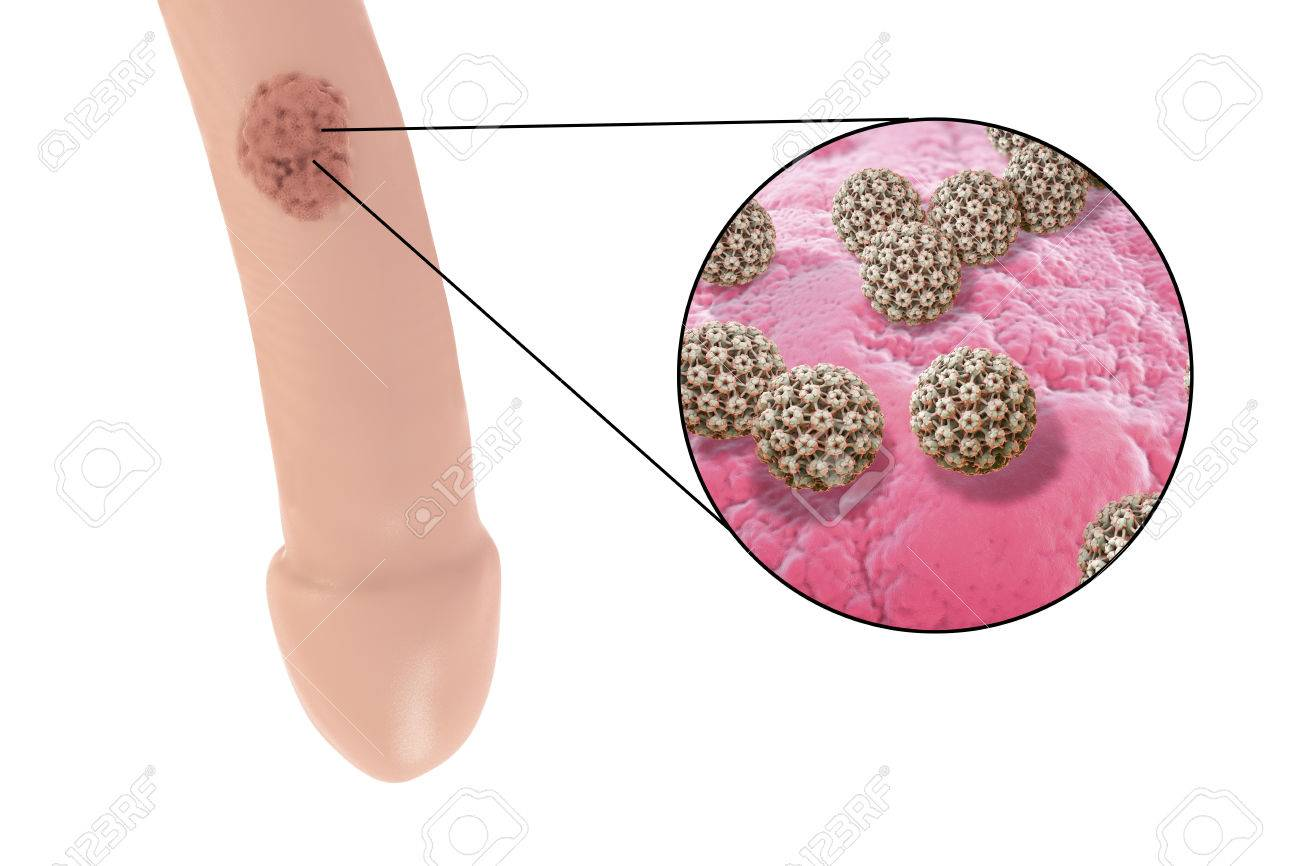 hpv lesion description