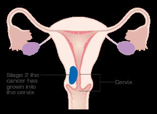 aggressive cancer in womb papiloma perro contagio humano