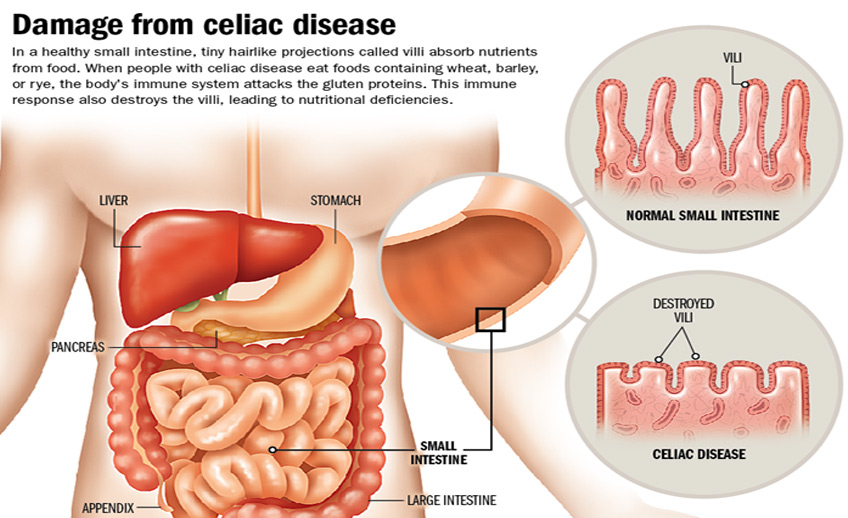 intestinal cancer from celiac disease hpv virus in pregnancy