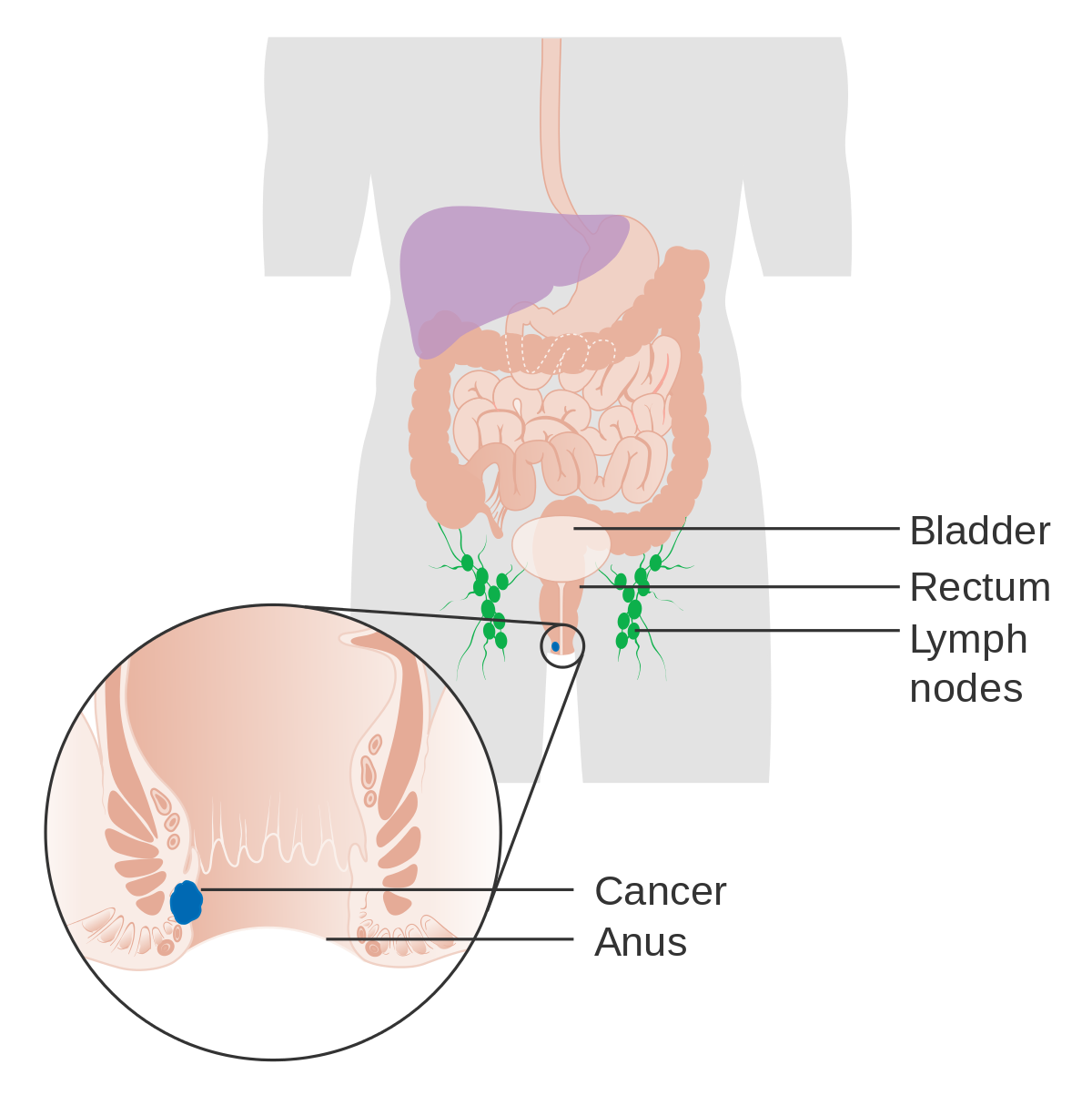 hpv e cancer no homem