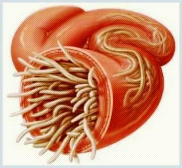 infectie cu paraziti intestinali simptome