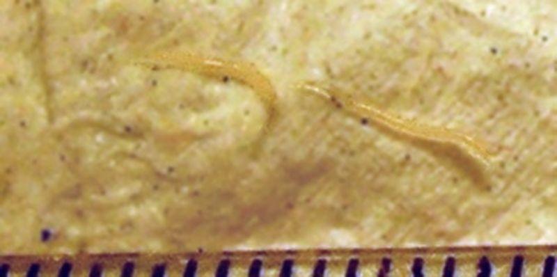 viața pinworms