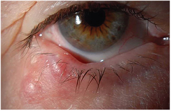 hpv in the eye