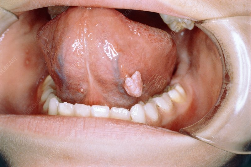 metale grele traducere engleza signs of hpv cervical cancer