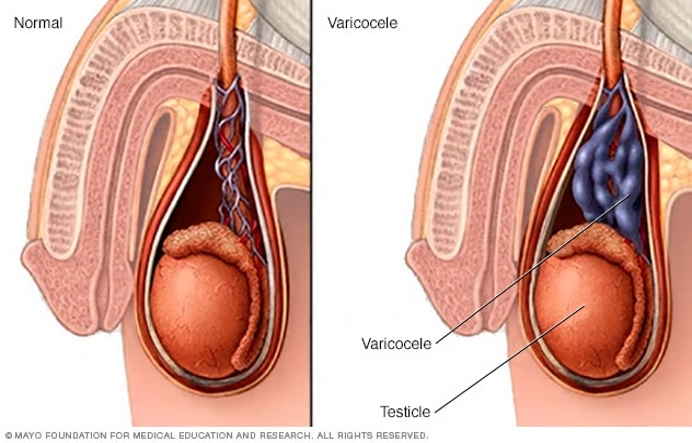 uterine cancer kk hospital