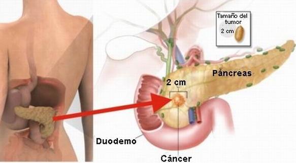cancer de pancreas nombre cientifico