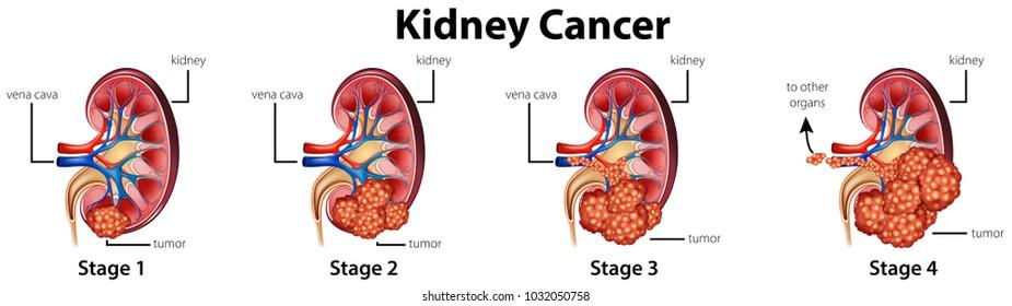 renal cancer nice cancer de col uterin b2
