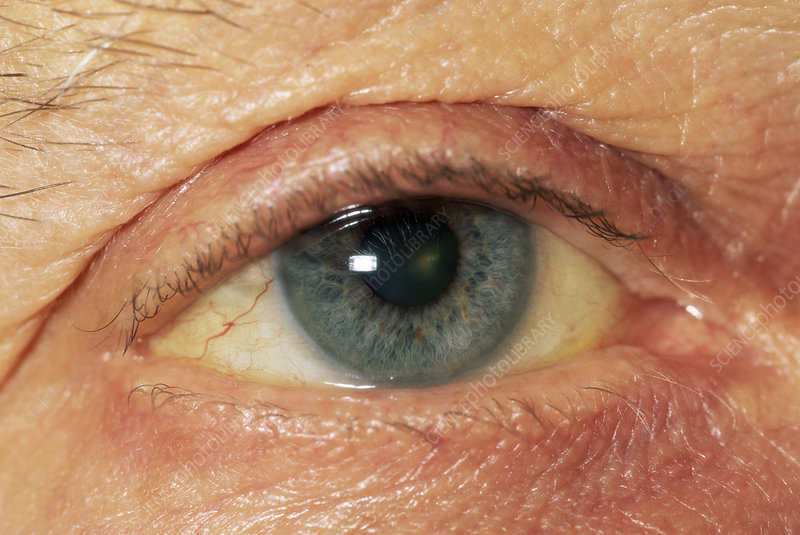 pancreatic cancer yellow skin and eyes que es leukemia cancer