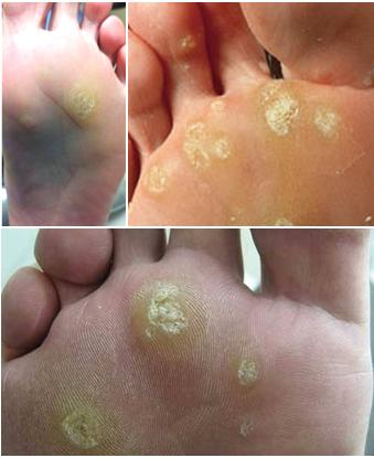 verruca foot disease treatment