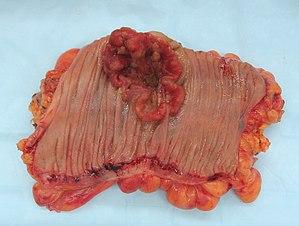 cancer benign de colon cancer laringe y cuerdas vocales