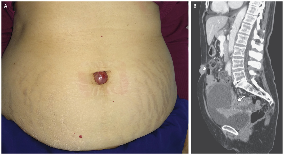 gastric cancer umbilical nodule