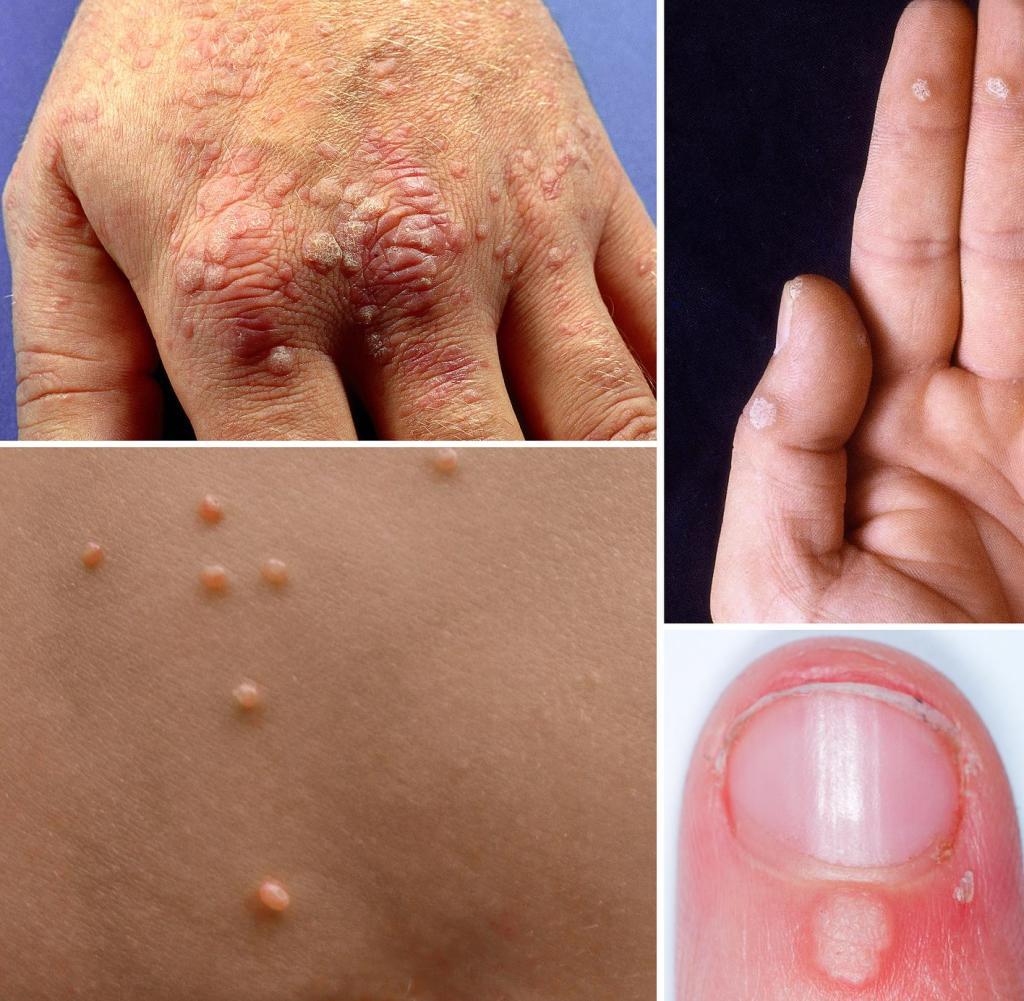 cancer biliar pronostico warts treatment boots