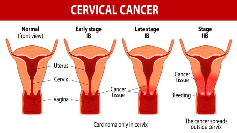 cancer cervical bleeding