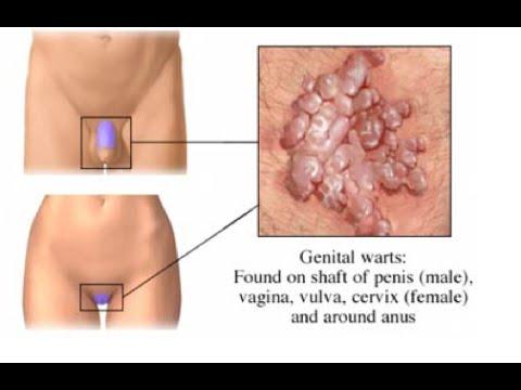 human papillomavirus infection regions warts on hands bleeding