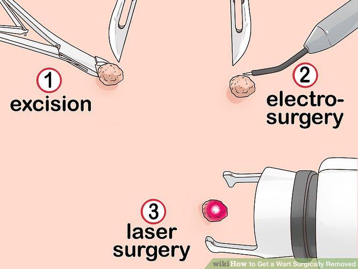 hpv laser treatment procedure detoxifiere pastile