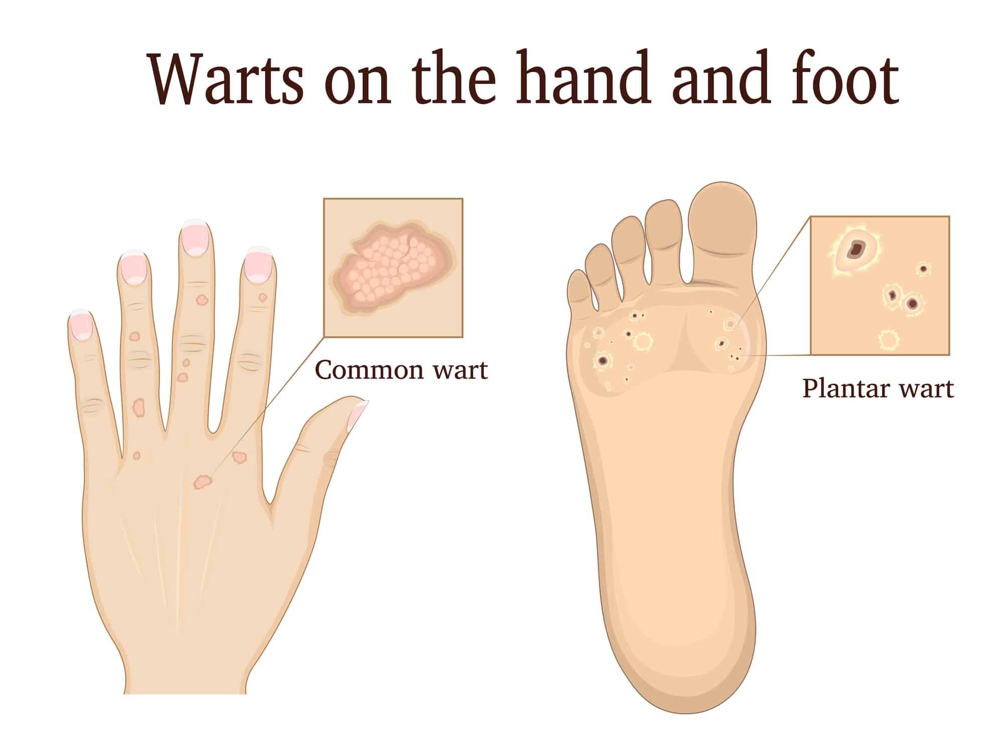 wart on foot essential oils