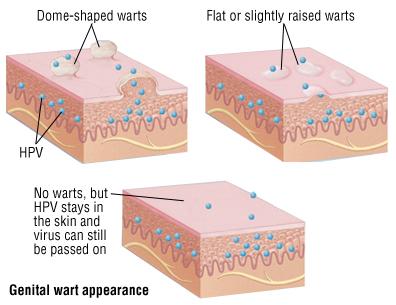 hpv genital wart removal