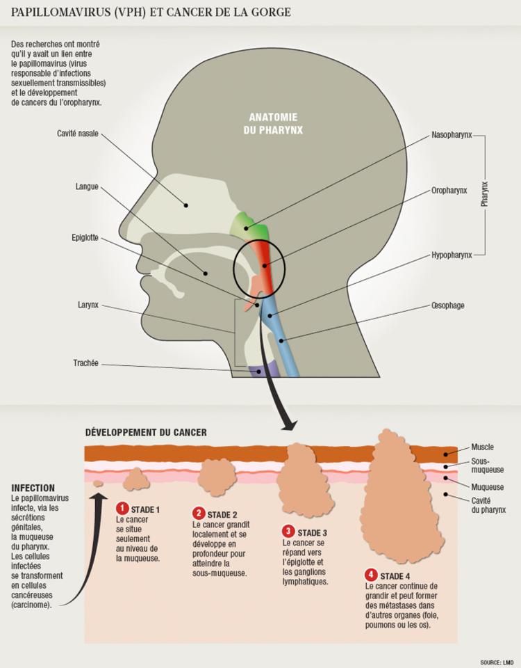 cancerul poate fi invins papilloma benigno o maligno