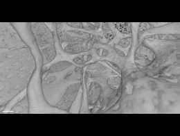 flatulenta digestiva dex neuroendocrine cancer types