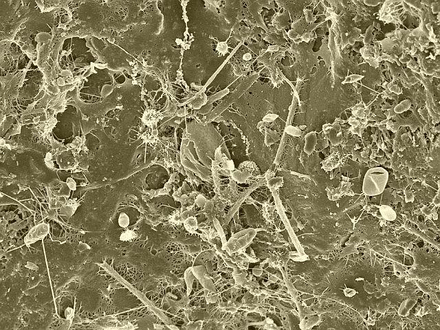 bacterii de fermentatie parasitos intestinales oxiuros tratamiento natural