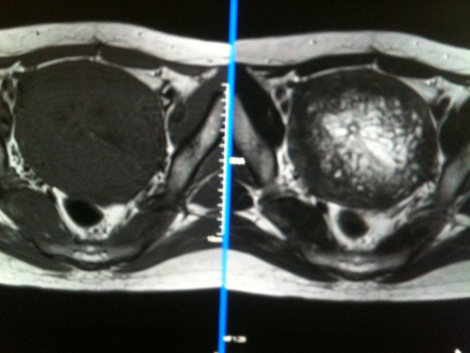 paraziți in corp cancer genital femei simptome