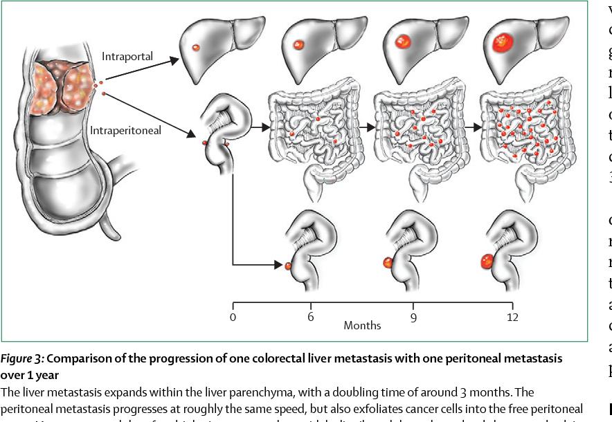 cancer peritoneal estadio 4