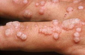 virus papiloma humano en ano cancer la san la barbati simptome