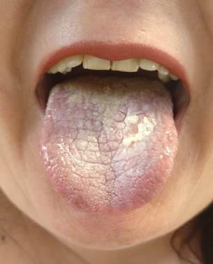 papiloma escamoso lingual nasal warts removal