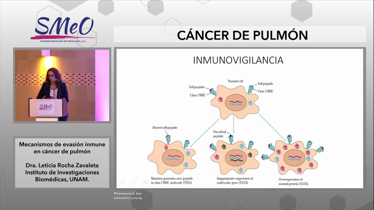 cancer pulmonar unam