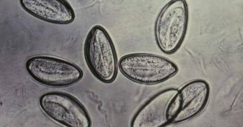 infestacion por oxiuros que es como quitar el virus del papiloma humano en hombres