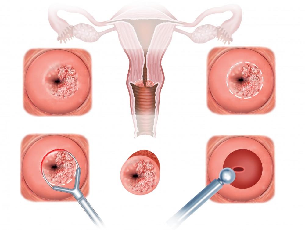 6 simptome ale cancerului la femei. Află ce spun medicii despre aceste semne ale cancerului