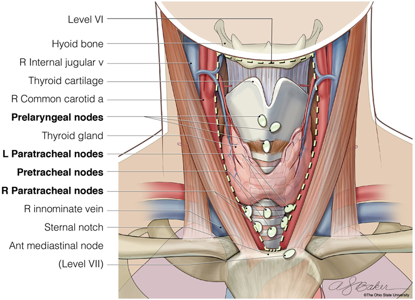 papillary thyroid cancer lymph node dissection