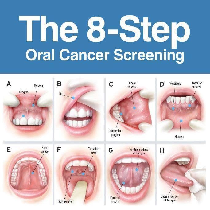 hpv causes mouth cancer oxiuri la bebelusi