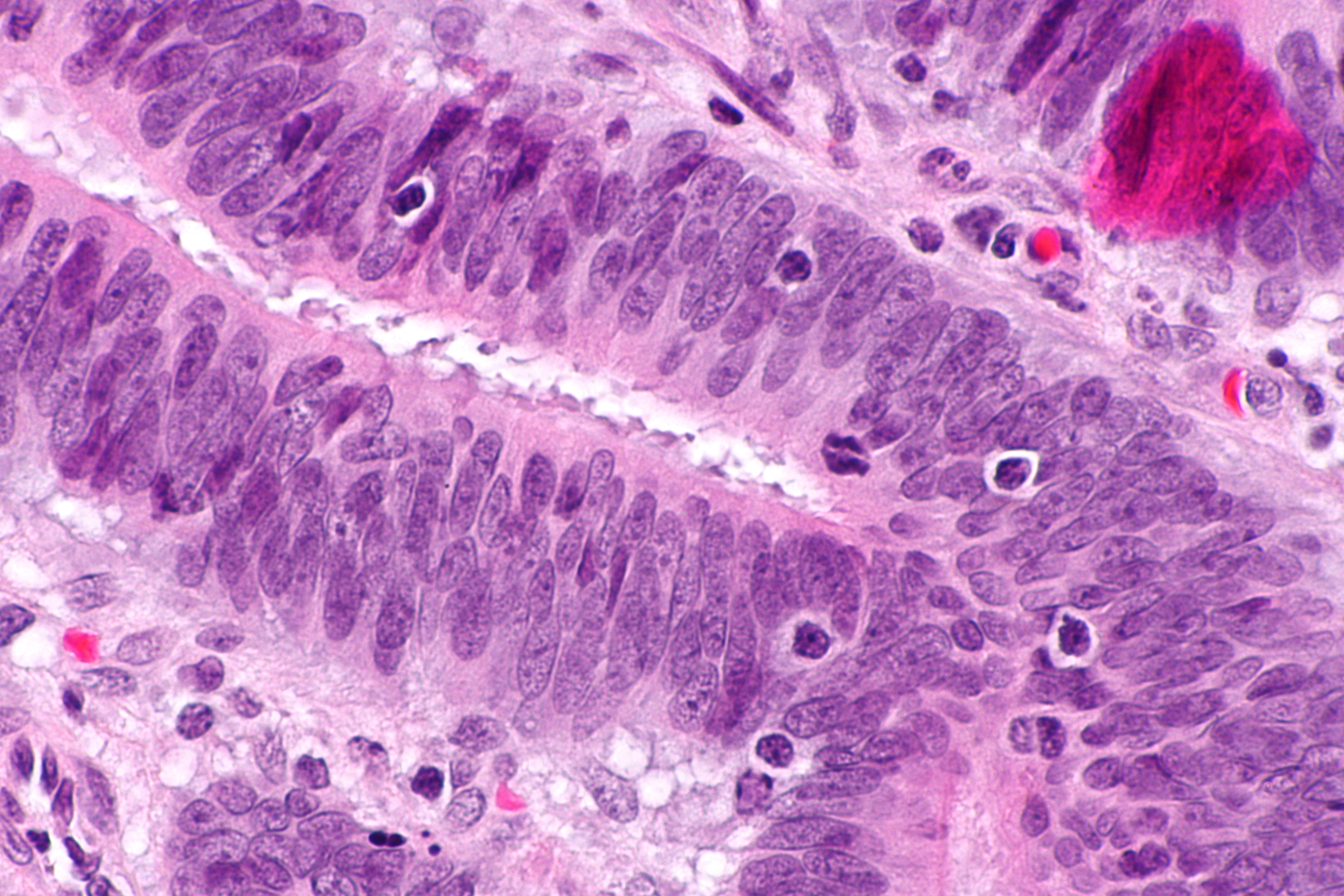 peritoneal cancer lynch syndrome