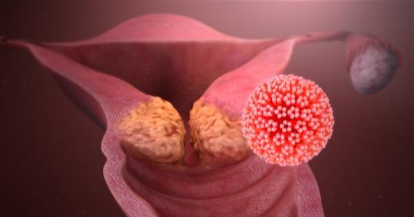 todo cancer de utero e causado pelo hpv intraductal papilloma surgery what to expect