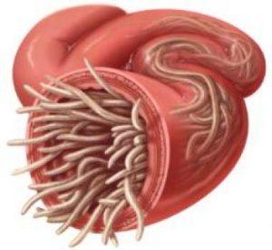 crijevni paraziti kod ljudi simptomi genital warts removal creams