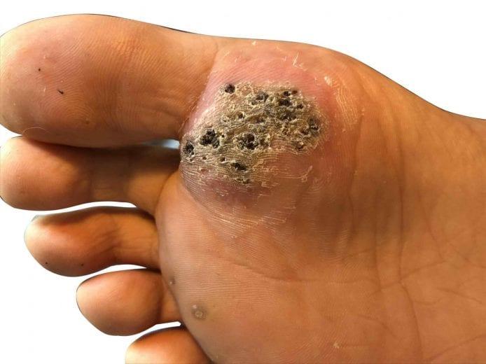 wart on foot looks black