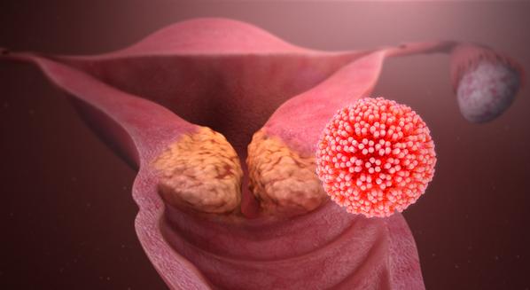 incubatie oxiuri papilloma virus e ano
