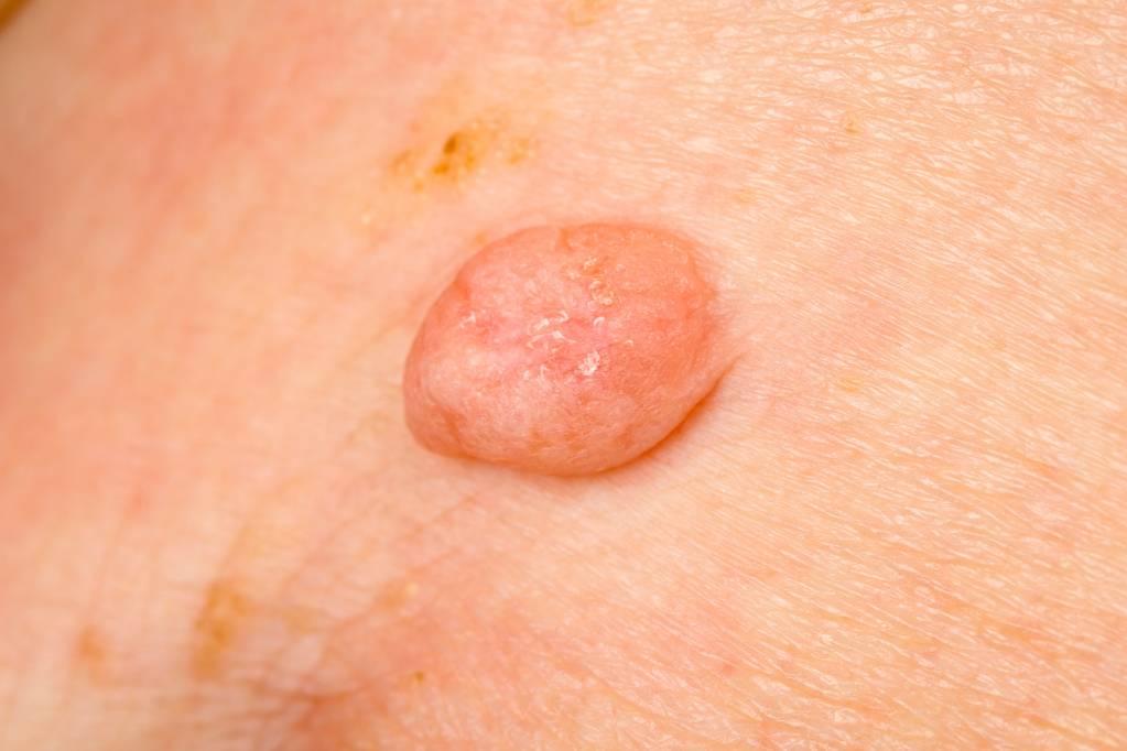 wart treatment uk boots cancer faringian simptome