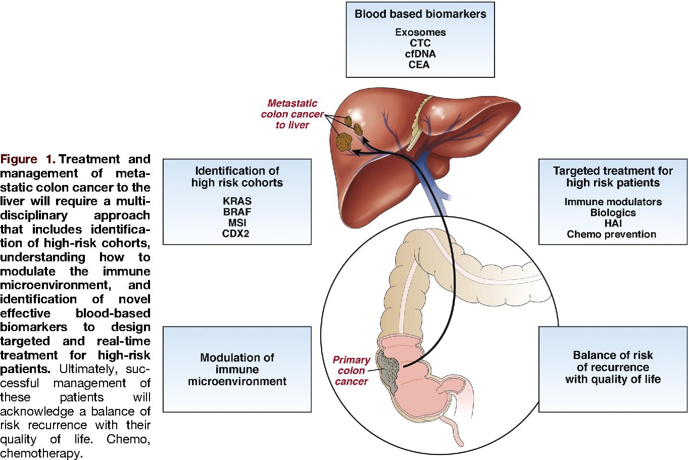 cancer colon liver