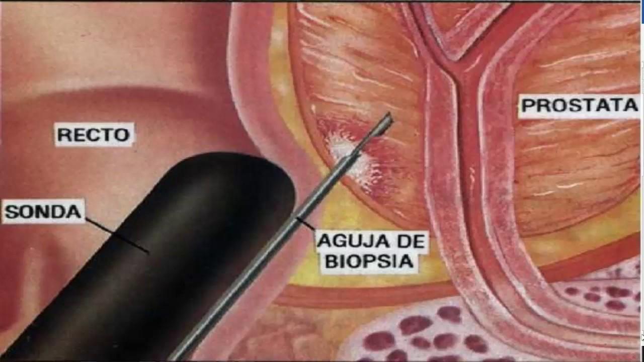 virus del papiloma como se contrae metastatic cancer esophageal